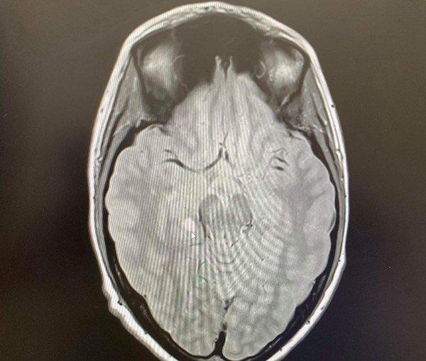 Becky's brain scan